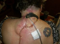 Wound vacuum after trapezius flap surgery