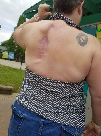 Healed after trapezius flap surgery